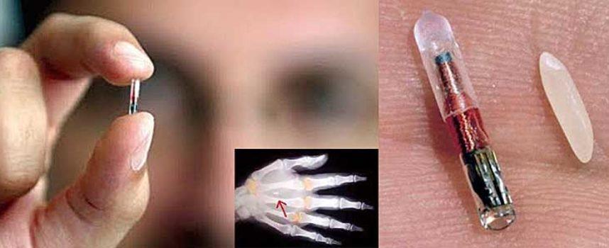 Crece la implantación de microchips en Australia